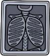 تشخيص وأشعة